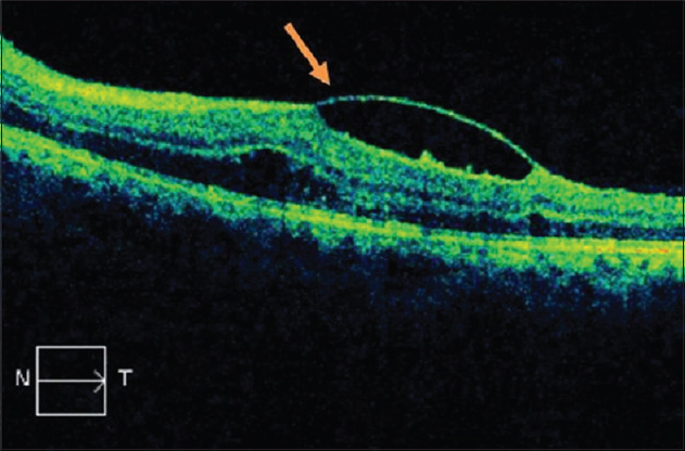 Figure 3: Optical coherence tomography of the left eye