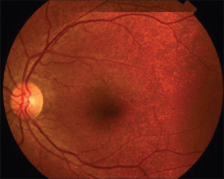 Figure 3 Fundus Photograph Of The Left Eye With Peau Dorange