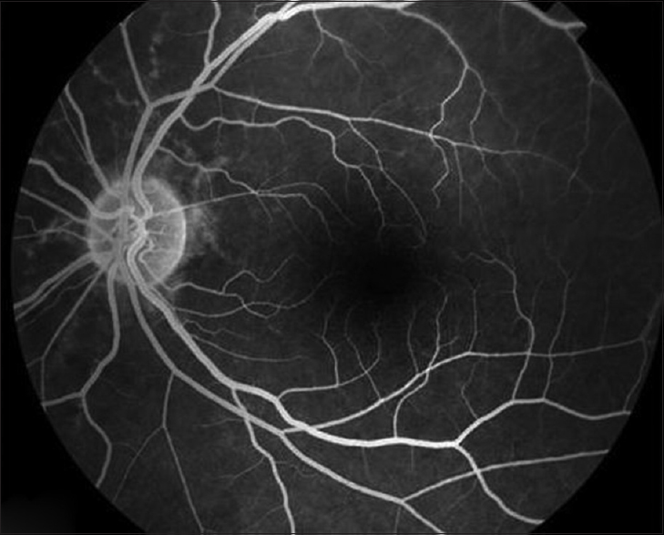 Figure 5 Fluorescein Angiography Of The Left Eye Showing Angioid Streaks In Great Detail