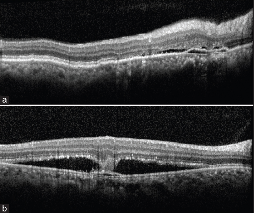 Figure 4: Spectral domain optical coherence tomography of chronic central serous chorioretinopathy showing double layer sign (undulating retinal pigment epithelium layer over hyperreflective Bruch's membrane with hyporeflective content), shallow subretinal fluid, photoreceptor discontinuity, and dilated outer choroidal vessels underneath pigment epithelial detachment (a). Spectral domain optical coherence tomography of acute central serous chorioretinopathy showing bridging tissue as downward extension of outer retina toward pigment epithelial detachment (b)