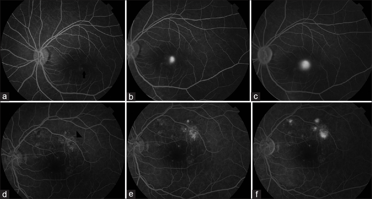 "Figure 6: Fundus fluorescein angiography in a case of acute central serous chorioretinopathy showing single point leak (arrow) in early phase (a) with a gradual increase in intensity and size of hyperfluorescence in midphase (b) and late phase (c) described as ""Ink-blot pattern."" Fundus fluorescein angiography of a chronic central serous chorioretinopathy showing window defects (arrowhead) in early phase (d), and multiple point leaks with ink-blot pattern in midphase (e) and late phase (f)"
