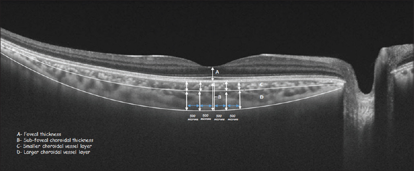 Figure 4: Measurement of choroidal thickness in normal group