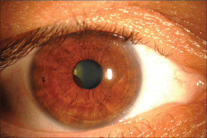 Figure 1: Predilation slit-lamp photograph of the right eye (OD) shows a hidden brown round lesion on the posterior surface of the iris from 6:30 to 9:00 pupillary margin