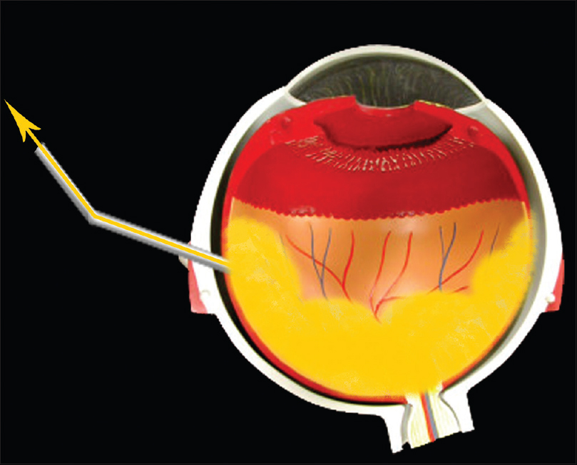 Figure 3: This photograph describes active aspiration of remaining fluid by vitrectomy machine when passive drainage is over