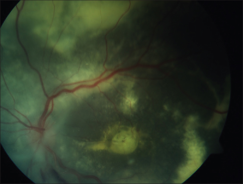 Figure 4: Postoperative image showing well-attached retina