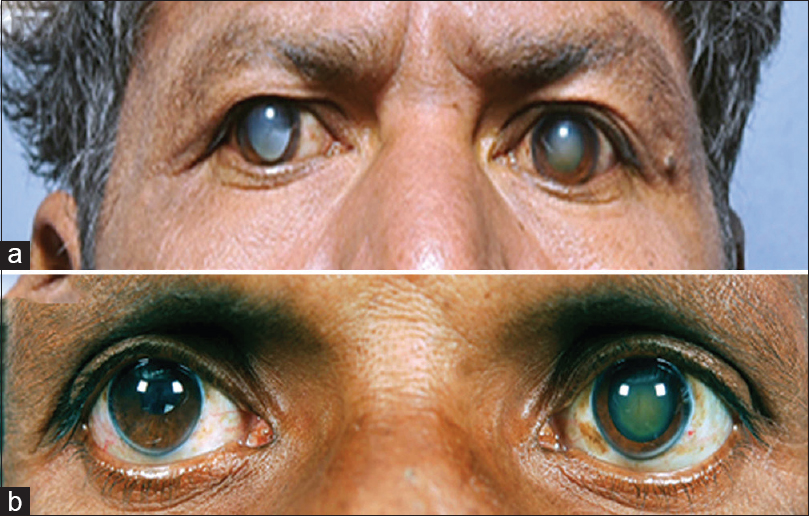 Figure 1: Digital photographs showing megalocornea in Case 1 (a) and Case 2 (b)