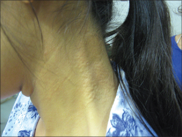 "Figure 2: The skin at the neck shows papules giving a ""plucked chicken"" appearance"