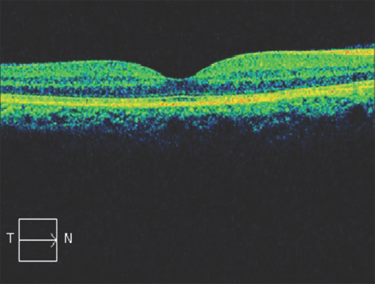 Figure 5: Optical coherence tomography at 12 months' post-Laser treatment