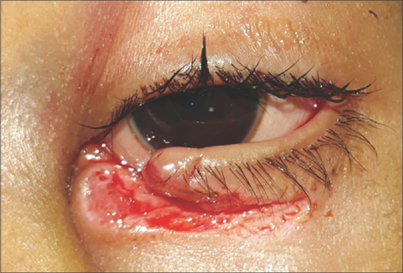 Figure 4: Clinical photograph of a child having canalicular laceration caused by sharp object