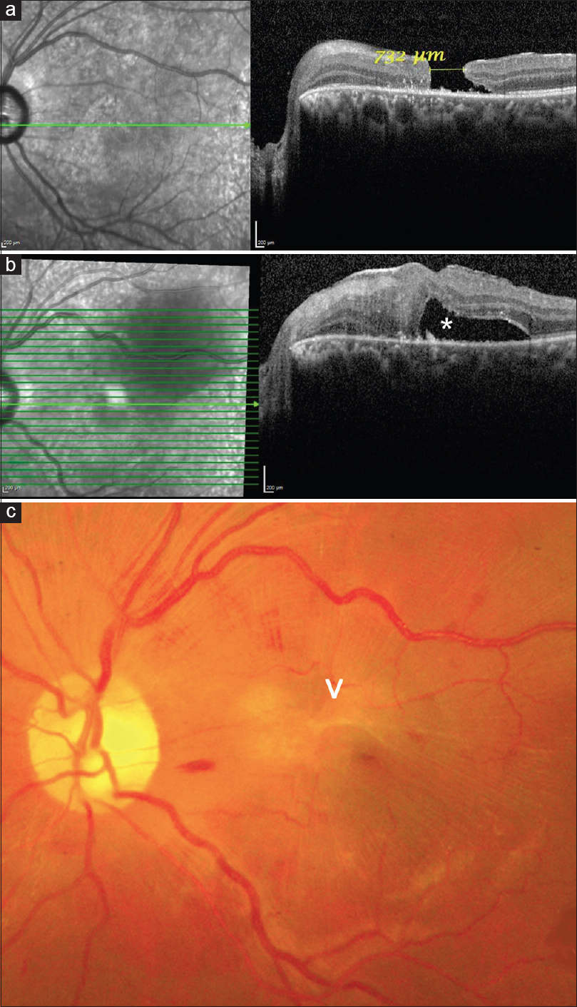 Figure 1: (a) Optical coherence tomography scan through the left macula showing a full-thickness macular hole of 732 μm. One edge of the hole is flat and the other elevated. No intraretinal cysts are seen. (b) Optical coherence tomography scan taken after 3 months showing a type 1 closure of the macular hole with a thick epiretinal membrane. Foveal detachment (asterisk) is also present which settled over the next 1 year. (c) Color fundus photograph of the left eye showing an epiretinal membrane (arrow head) with a closed macular hole. Also seen are a few splinter hemorrhages and tortuous macular blood vessels