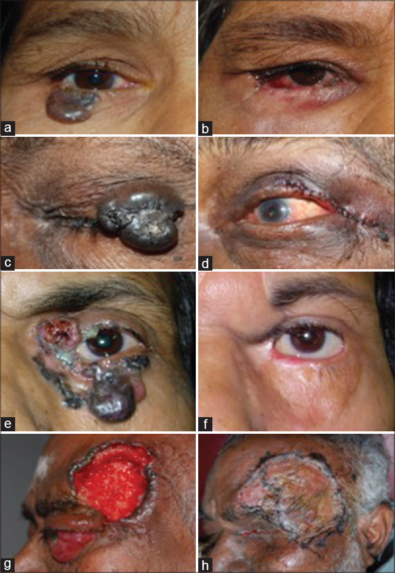 Figure 1: (a) External photograph showing right lower eyelid basal cell carcinoma, (b) external photograph after excision biopsy and eyelid reconstruction, (c) external photograph showing left upper eyelid basal cell carcinoma, (d) postoperative photograph after excision biopsy and eyelid reconstruction, (e) external photograph showing extensive periocular basal cell carcinoma, (f) External photograph after excision biopsy and eyelid reconstruction, (g) external photograph showing basal cell carcinoma involving left forehead with orbital involvement, (h) external photograph after excision biopsy, exenteration, and reconstruction