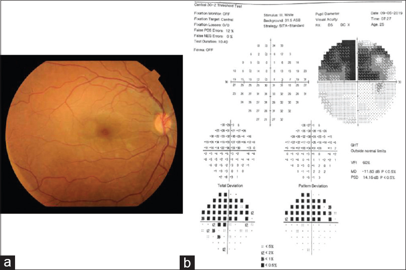Figure 2: Fundus photo (a) and visual field analysis (b) of the right eye at the 3<sup>th</sup> month