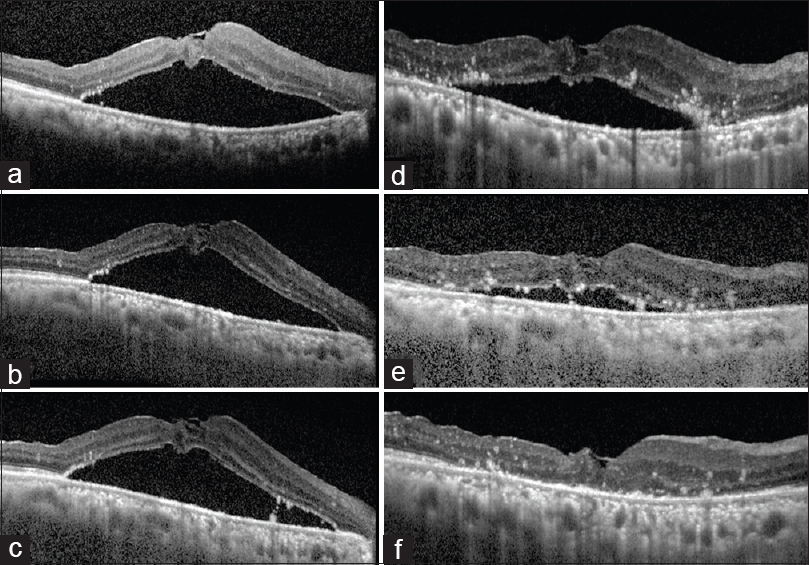Figure 2: Closed macular hole with persistent detachment 1 month after the first surgery (a), after 2 months (b), and at the end of 4 months (c). Decreased subretinal fluid 1 month after the second surgery (d), 2 months (e), and complete resolution by 4 months (f)