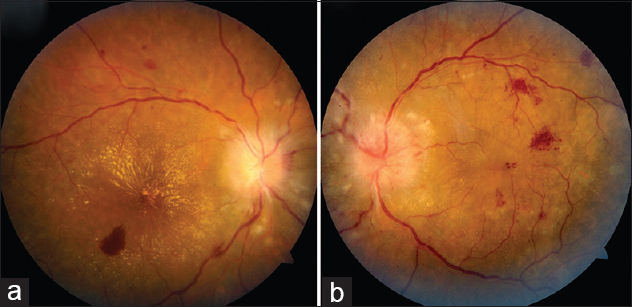 Figure 1: (a and b) Fundus photograph of the right and left eye, respectively