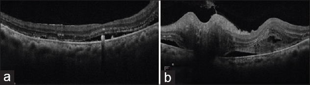 Figure 2: (a and b) Optical coherence tomography picture of the right and left eye, respectively